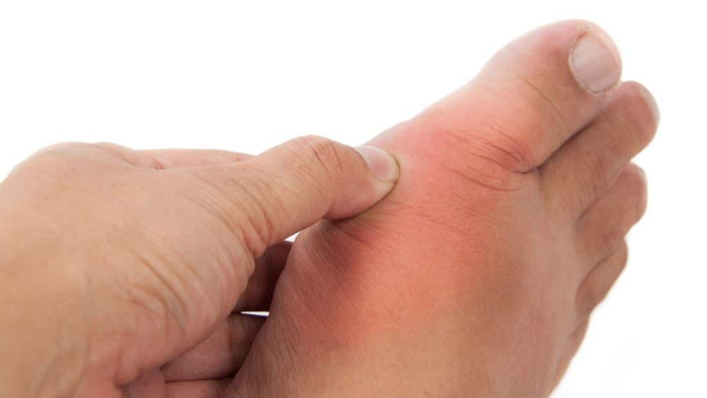 It's Possible To Heal Gout